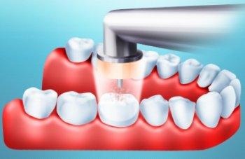 СТОМАТОЛОГИЯ: Метод озонотерапии в стоматологии
